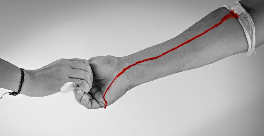 Ασθενής με όγκο στο κεφάλι- Έκκληση για αίμα