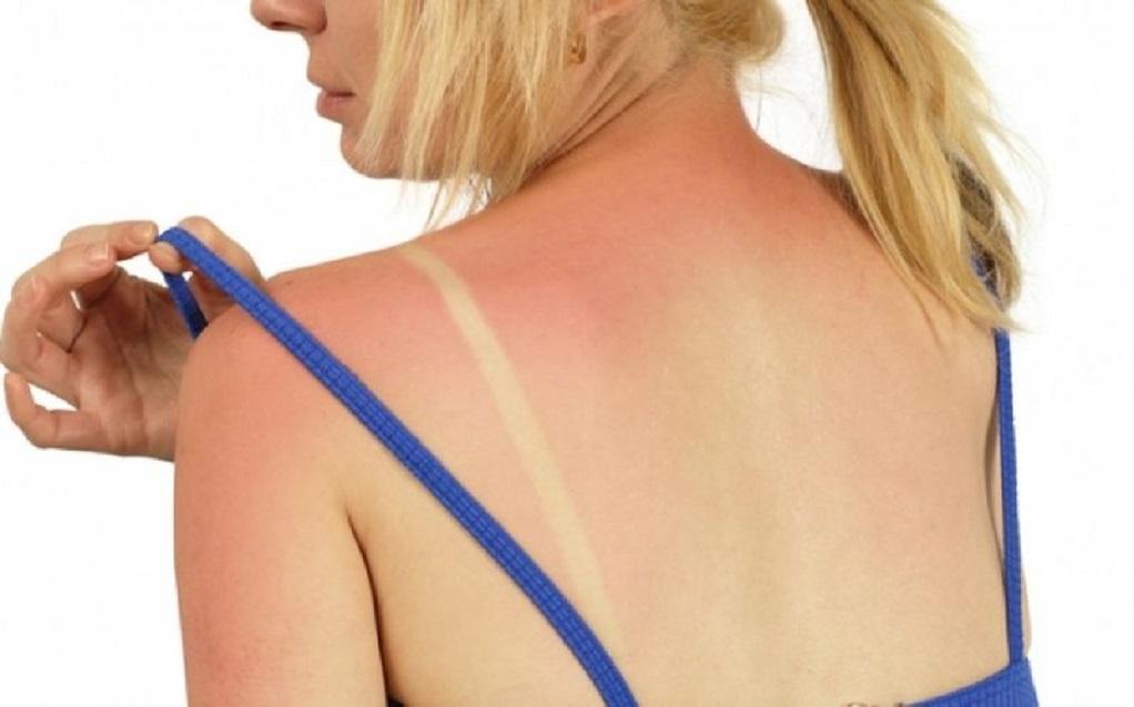 Ηλιακό έγκαυμα – Βήματα για γρήγορη θεραπεία (VIDEO)