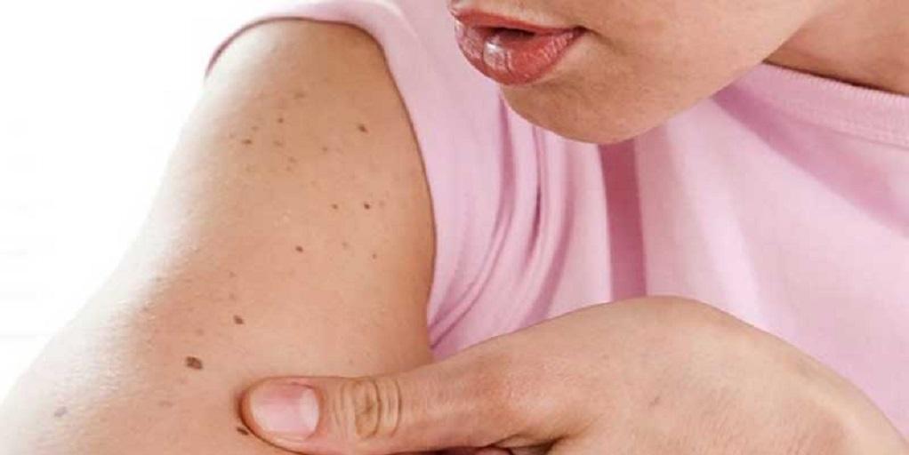 Ελιές στο δέρμα – Πότε γίνονται ανησυχητικές