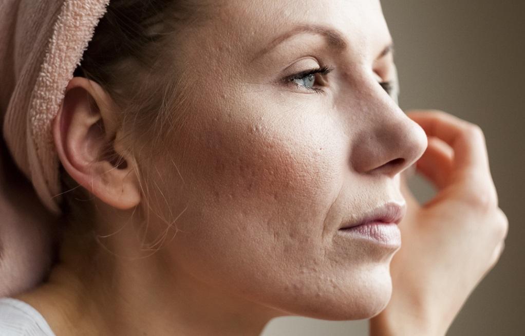 Πρόωρη εμμηνόπαυση – Συμπτώματα (VIDEO)