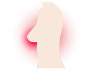 Καρκίνος του μαστού – Συμπτώματα που δεν είναι όγκος στο στήθος