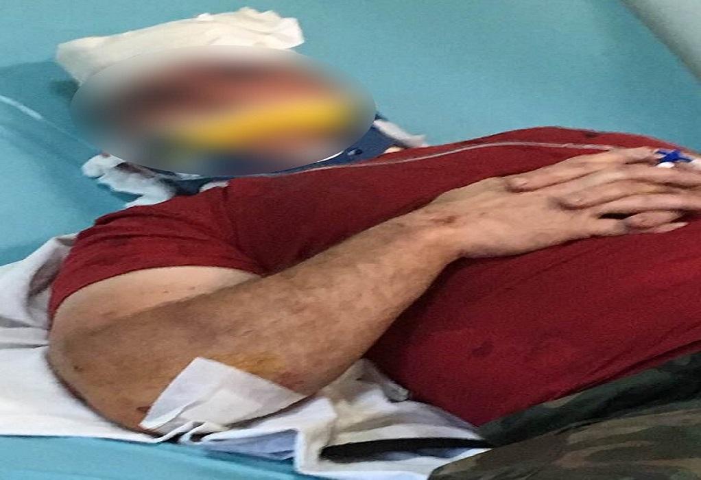 Ληστεία στο Καλοχώρι Θεσσαλονίκης με σοβαρό τραυματισμό άνδρα security