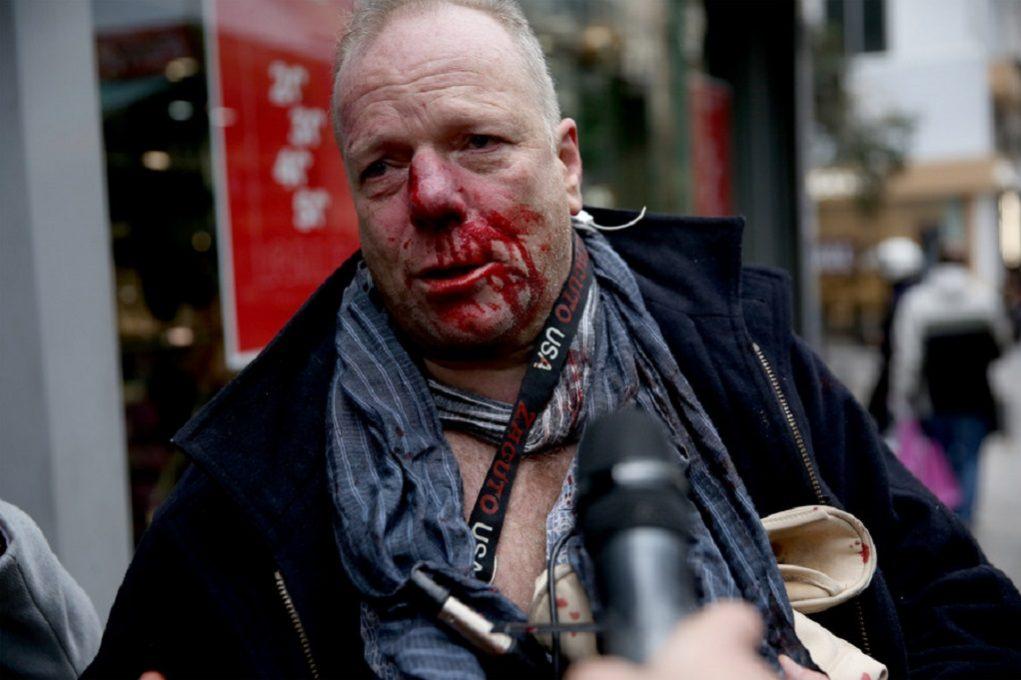 Σύνταγμα: Βίντεο – ντοκουμέντο από την επίθεση κατά του φωτορεπόρτερ